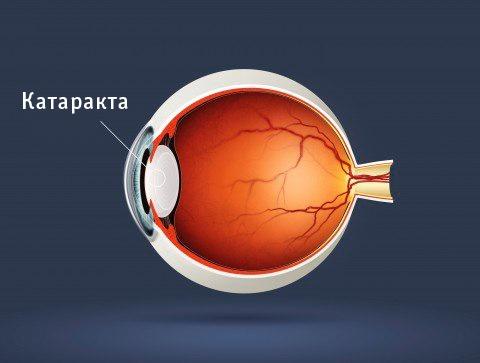 Лазер-ассистированная хирургия катаракты по сравнению со стандартной операцией – ультразвуковой факоэмульсификацией (резюме систематического обзора)