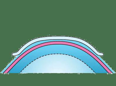 Ортокератология (ОК-терапия)