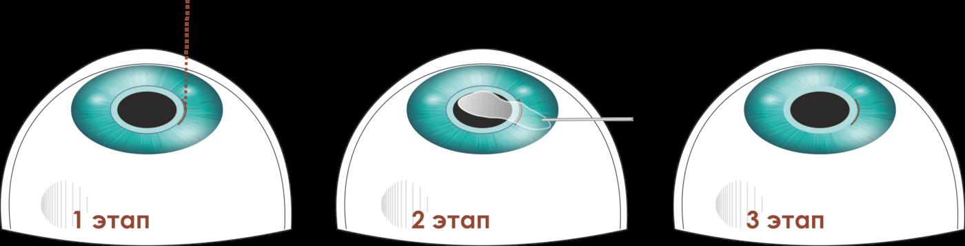 Лазерная коррекция зрения методом Relex Smile Спб клиника Зрение офтальмологический центр на Добролюбова, 20к1 СМАЙЛ