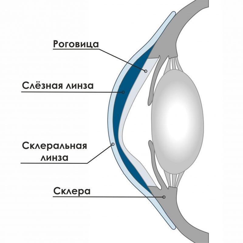 Жесткие газопроницаемые склеральные контактные линзы